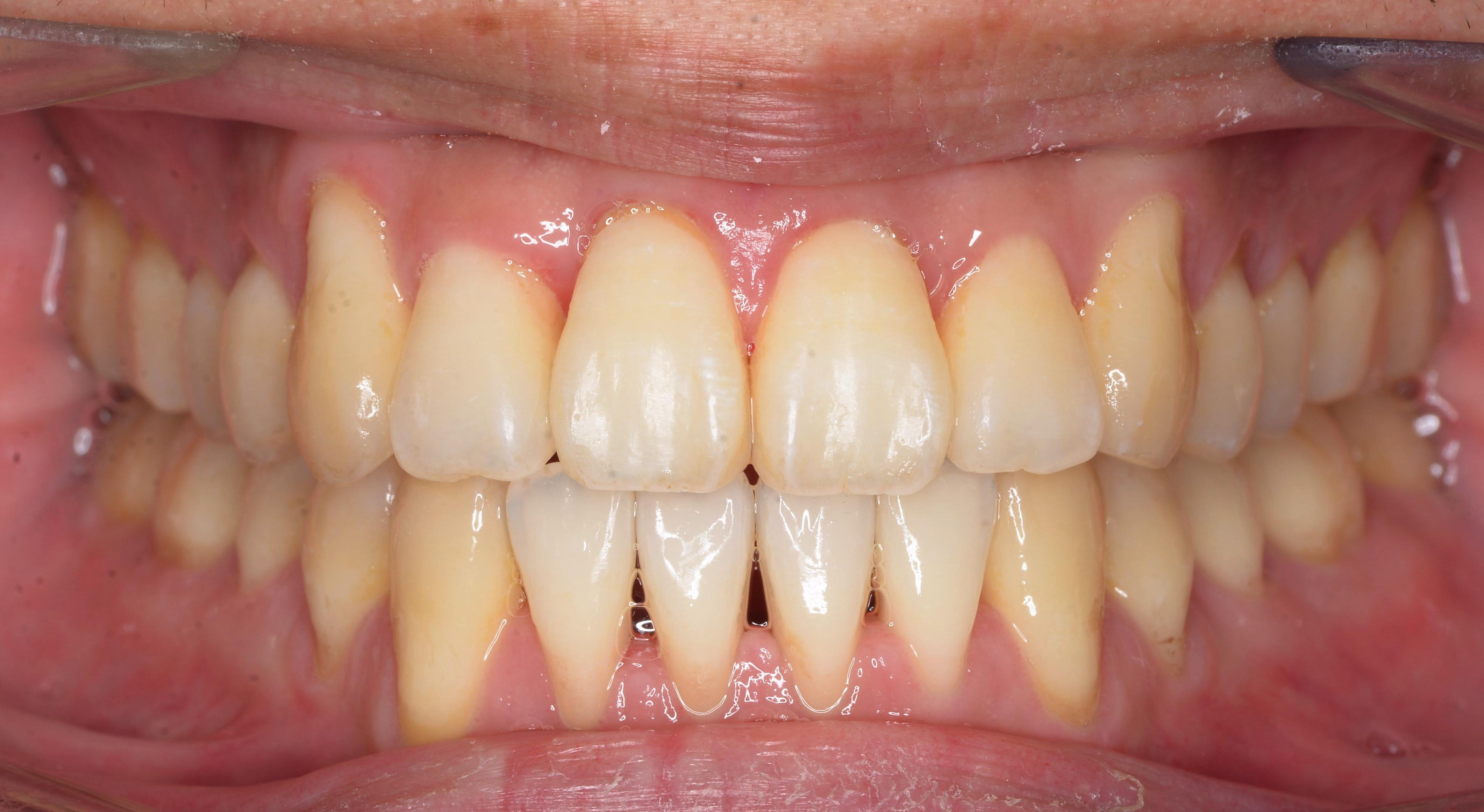 永久歯の治療